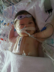 Congenital Heart Disease – The Importance of Early Testing_Jovie-prepping-for-surgery