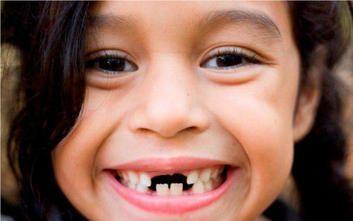 HowToDevelop Naturally Straight Teeth in Children_cute toothy girl