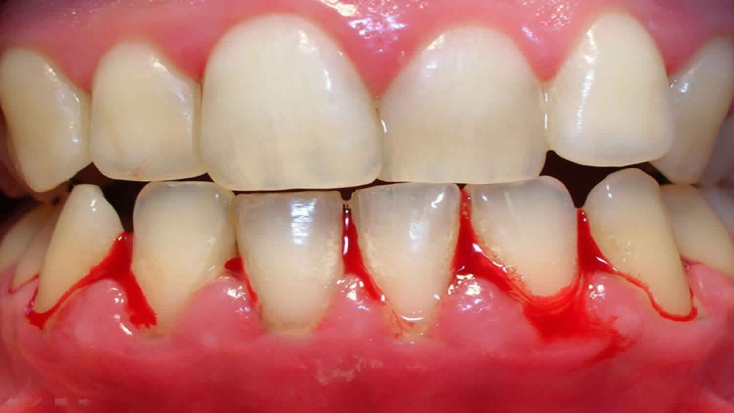 7 Reasons why your Bleeding Gums Need Attention