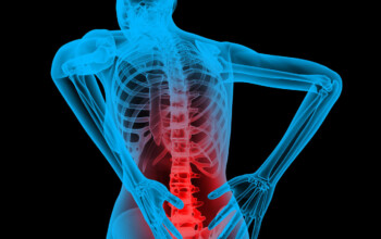 Getting the Facts Straight About Posture_back x-ray